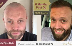 Este Prime Clinic ile Hayal Ettiğiniz Güçlü Saçlara Kavuşun